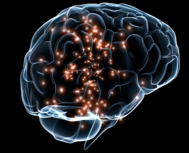 Brain Scam